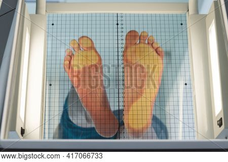 The Patients Feet Are Placed On A Special Apparatus For Determining The Load. On One Foot, The Load
