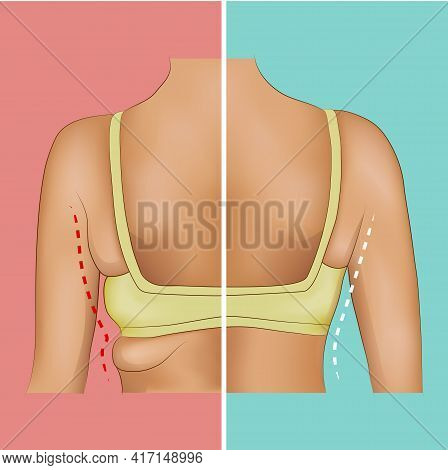 Armpits Fat Before And After Sport, Diet Or Surgery