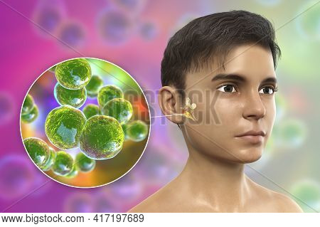 Moraxella Catarrhalis Bacterium As A Cause Of Otitis Media. 3d Illustration Showing Purulent Inflamm
