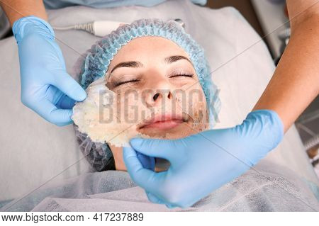 Close Up Of Beautician Hands Pulling Off Deep Cleansing Mask From Female Client Face. Woman Having S