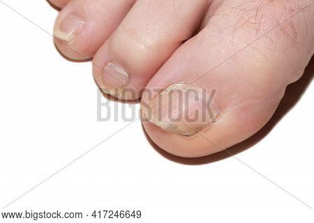 The Nail.human Toenail Fungus. Damaged Nail. Nail Disease