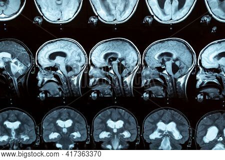 Mri Scan Or Magnetic Resonance Image Of The Brain Showed Obstructive Triventricular Hydrocephalus Wi