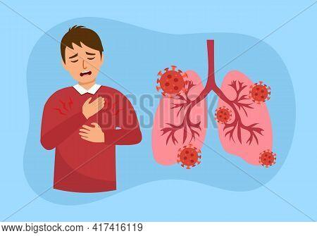 Sick Man Has Chest Pain Symptom And Lungs With Virus Cells In Flat Design. Coronavirus Pneumonia Dis