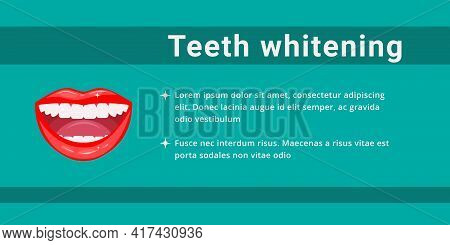 Teeth Whitening. An Open Smiling Female Mouth With Healthy White Teeth. Dental And Oral Care. Dental