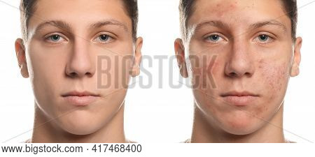 Collage With Photos Of Teen Guy With Acne Problem Before And After Treatment On White Background. Ba