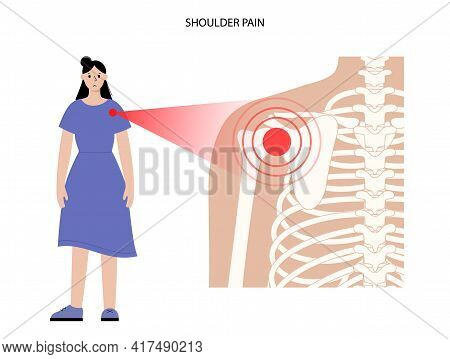 Pain In Shoulder Or Scapula. Skeleton X Ray Woman Silhouette. Joints And Cartilage In Human Body. Ar