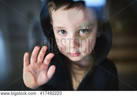 Poor Sad Small Boy With Cut Eyebrow Standing Indoors At Home, Poverty Concept.