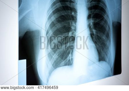 X-ray Of The Lungs. Chest X-ray. Viewing A Picture Of The Lungs In The Hospital On A Reflective Boar