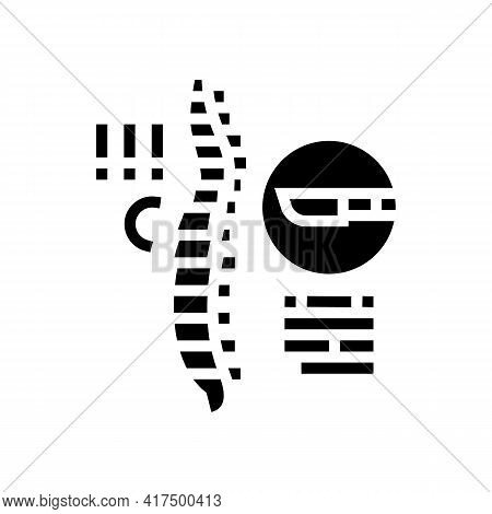 Surgery Scoliosis Glyph Icon Vector. Surgery Scoliosis Sign. Isolated Contour Symbol Black Illustrat