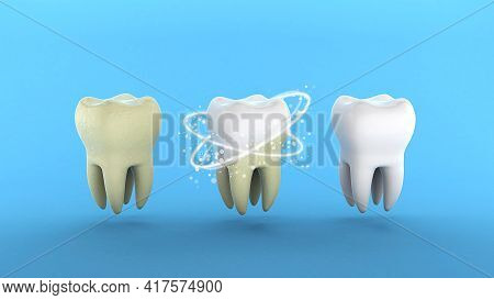 Teeth Whitening. Tooth With Tartar And After Ray Whitening. Blue Background. 3d Render.