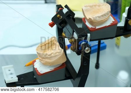 Model Of Human Jaws From Plaster To Prosthesis The Teeth, Orthodontist Doctor Work. Special Device F
