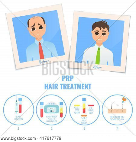 Man Before And After Platelet Rich Plasma Treatment