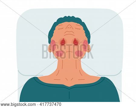 A Patient With Diseased Sublingual Salivary Glands. Vector Illustration Of Sialolithiasis.