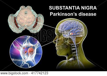 Black Substance Of The Midbrain In Parkinson's Disease, 3d Illustration Showing Decrease Of Its Volu