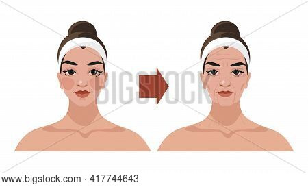 The Aging Process Of A Woman, Age-related Changes In The Face, Illustrations For A Beauty Salon, Cos