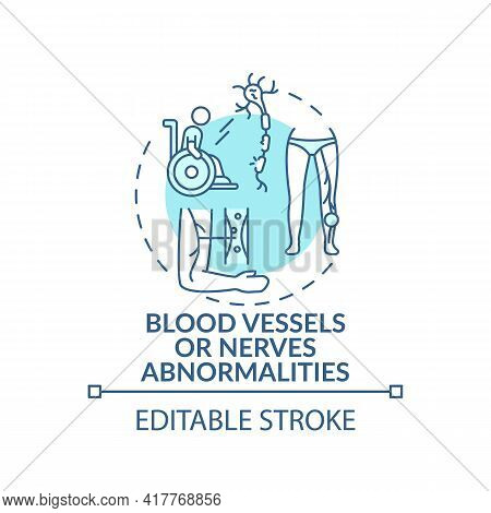 Blood Vessels And Nerves Abnormalities Concept Icon. Amputation Idea Thin Line Illustration. Congeni