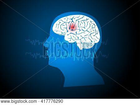Focal Seizure. Illustration Of Human Brain And Electroencephalograhy Or Eeg Originating From One Reg