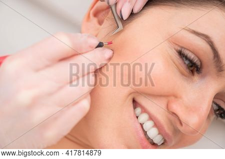 Woman On Electro-epilation Of The Face. Hardware Permanent Removal Of Unwanted Hair In The Salon