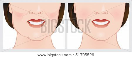 Illustration of Face Lift using dermal fillers. Before and after treatment. poster