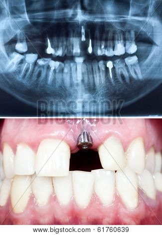 A macro shot of dental implant in the oral cavity and its Panoramic dental X-Ray  poster