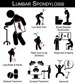 Lumbar Spondylosis symptoms pictogram ( Low back pain , refer pain to leg , leg numbness and weakness , Bowel bladder dysfunction ) and Medical , Surgical treatment poster