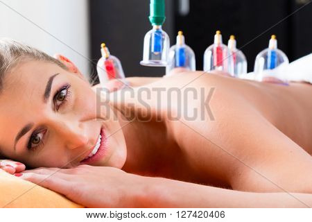 Woman in alternative medical cupping therapy with cups being applied on her back