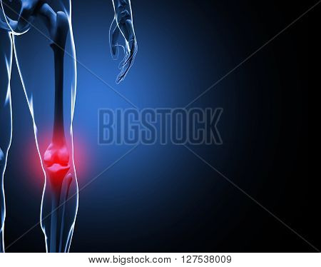 3d illustration Knee Pain Skeleton on black background