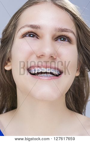 Closeup Portrait of Caucasian Female Teenage Girl With Teeth Brackets. Posing in Studio. Vertical Image Composition