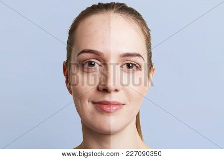 Close Up Portrait Of Woman`s Face Divided Into Two Parts: Healthy Pure Skin And Unhealthy With Black
