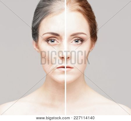 Collage Of Two Portraits Of The Same Old Woman And Young Girl. Face Lifting, Aging And Skincare Conc