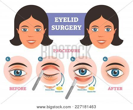 Eyelid Surgery Procedure Before  After Illuatration With Main Steps. Excess Skin And Fat Removal Pla