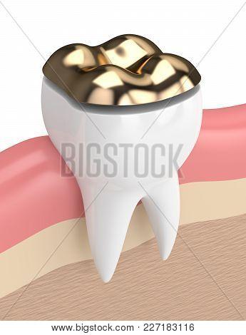 3D Render Of Teeth With Dental Onlay Filling