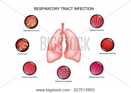 Vector Illustration Of Lungs And Respiratory Tract Infections