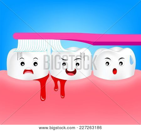 Cute Cartoon Tooth Character Brushing With Bleeding On Gum And Tooth Concept Gingivitis Or Scurvy. I