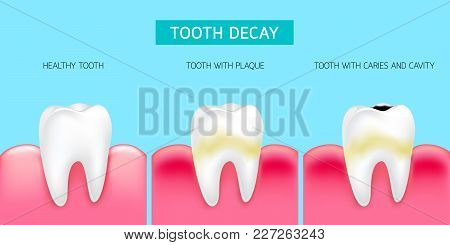 Step Of Tooth Decay Formation. Healthy Tooth, Forming Dental Plaque And Finally Caries And Cavity. I