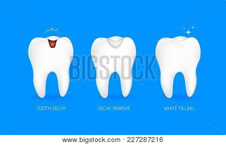 Step Of Tooth Filling. Tooth Decay, Decay Remove And White Filling. Illustration Isolated On Blue Ba