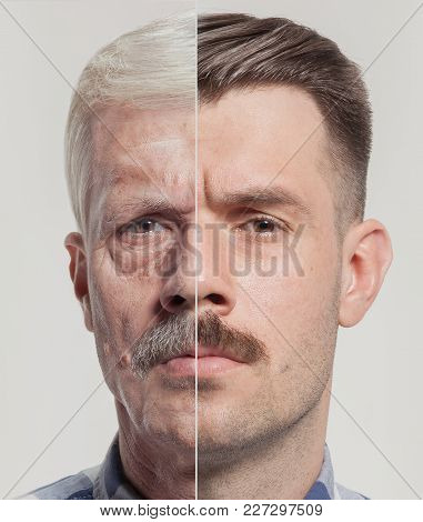Collage Of Two Portraits Of The Same Old And Young Man. Face Lifting, Aging And Skincare Concept For