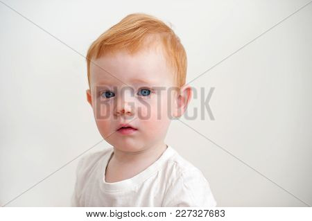 A Baby With A Scratch On His Nose On The White Background