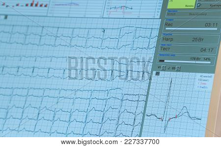 Overall Nurses Station Monitor In The Intensive Care Unit. Ecg Monitor Screen