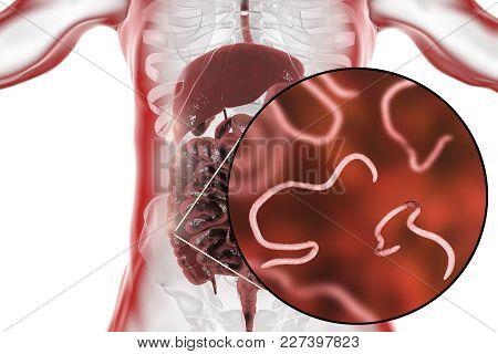 Helminths Nematodes Enterobius In The Gut. Threadworm Which Causes Enterobiasis, 3d Illustration Sho