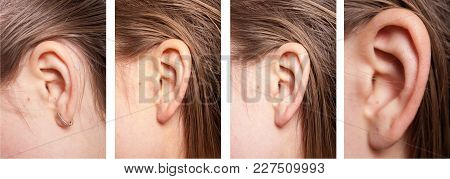 Ear Of A Young Healthy Girl Detail Of The Head With Female Human Ear And Hair Close Up Set Of Four P