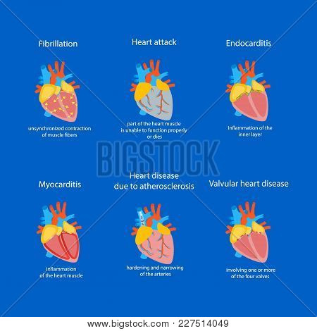 Cartoon Heart Disease Set Cardiovascular System Concept Of Diagnostics And Health Care Flat Design S