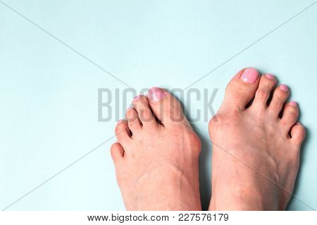 Valgus Deformity. Flatfoot. Orthopedic Problem And Disease