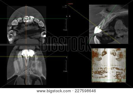 Panoramic Dental 3d X-ray Of Teeth From Computer Screen. Frontal Facial Images. Tooth With Dental Cr