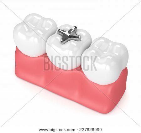 3D Render Of Teeth With Dental Amalgam Filling