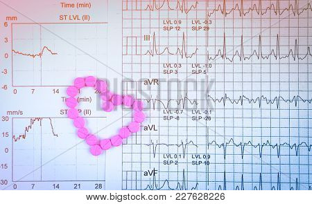 Ekg Or Ecg (electrocardiogram) Graph Report Paper. Est ( Exercise Stress Test ) Result And Pink Hear