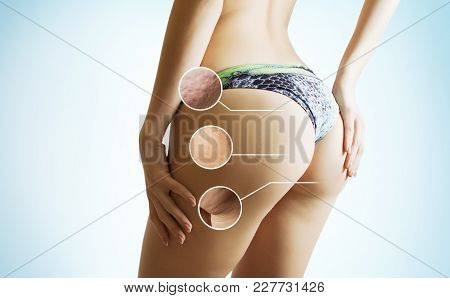 Weight Loss Concept - Problem Zones Of Female Body