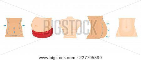 Abdomen Icon Set. Cartoon Set Of Abdomen Vector Icons For Web Design Isolated On White Background