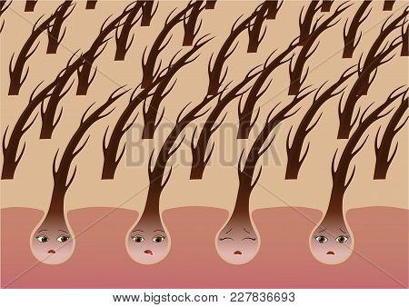 Cartoon Hair Follicles On The Scalp Suffer From Dryness. Vector Illustration