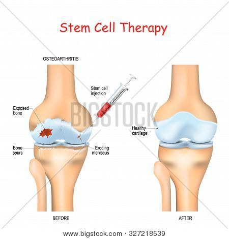 Stem Cell Therapy For Pain In Osteoarthritis, Knees And Hips Use The Healing Properties Of Your Own